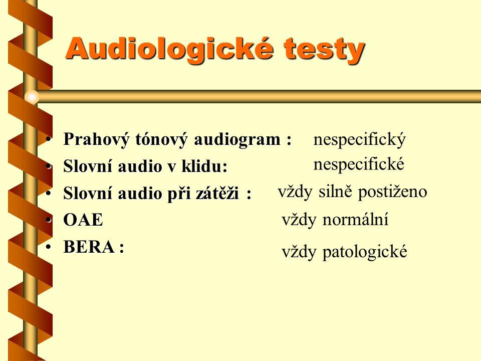 Audiologické testy Prahový tónový audiogram :Prahový tónový audiogram : Slovní audio v klidu:Slovní audio v klidu: Slovní audio při zátěži :Slovní aud