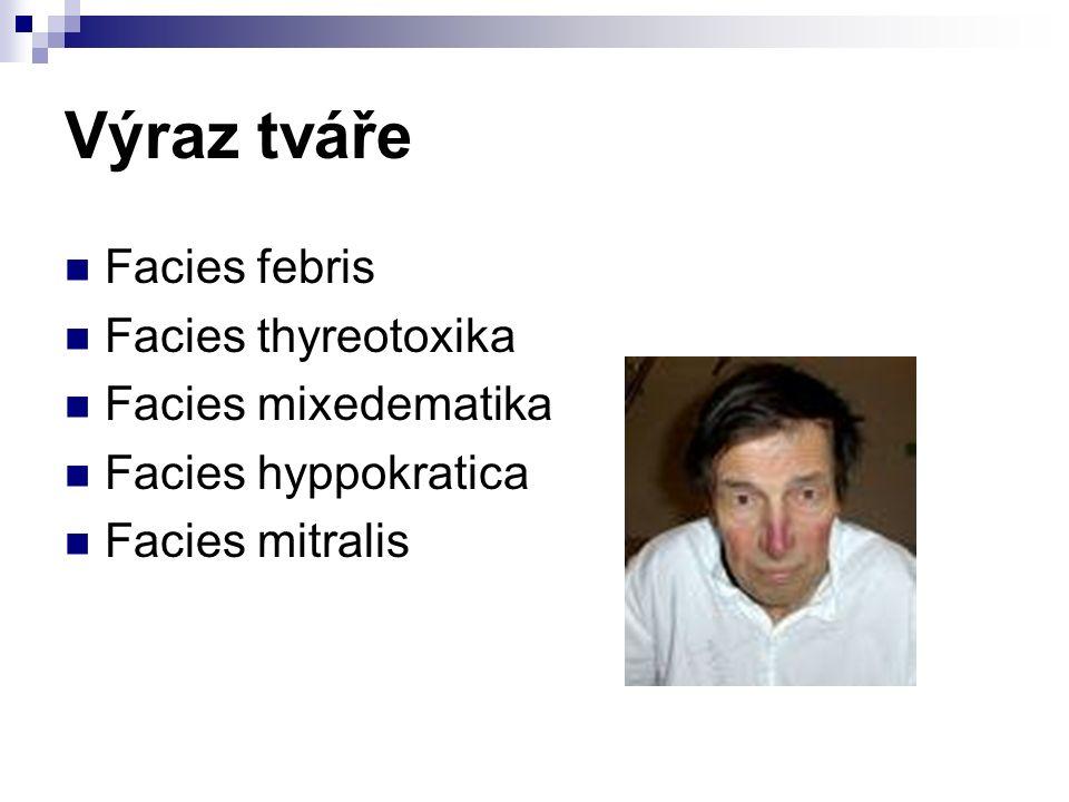 Výraz tváře Facies febris Facies thyreotoxika Facies mixedematika Facies hyppokratica Facies mitralis