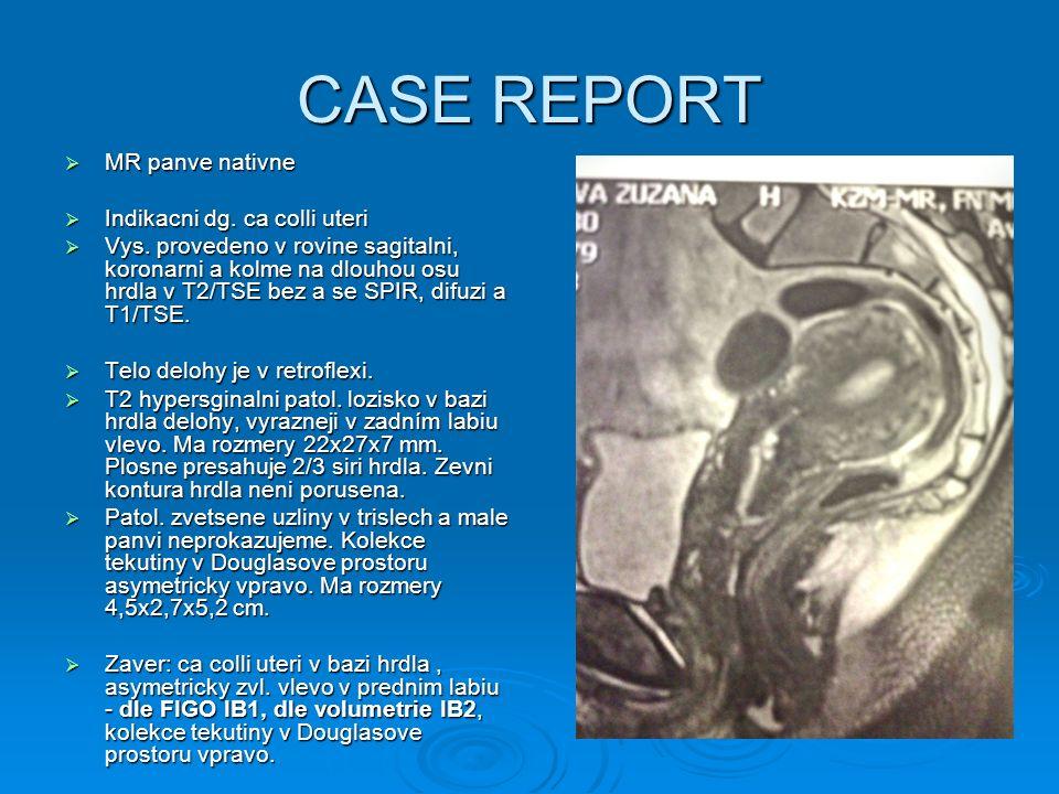 CASE REPORT  MR panve nativne  Indikacni dg. ca colli uteri  Vys. provedeno v rovine sagitalni, koronarni a kolme na dlouhou osu hrdla v T2/TSE bez