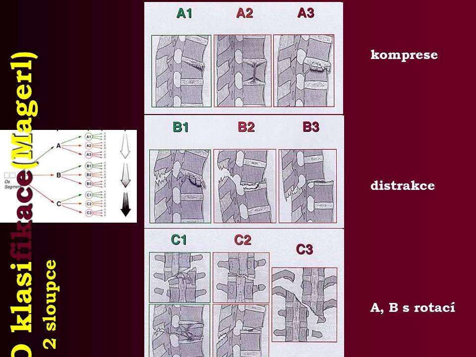 AO klasifikace(Magerl) 2 sloupce komprese distrakce A, B s rotací
