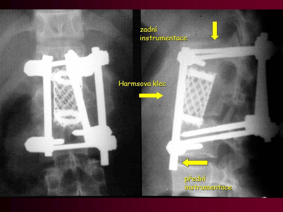 Harmsova klec přední instrumentace zadní instrumentace
