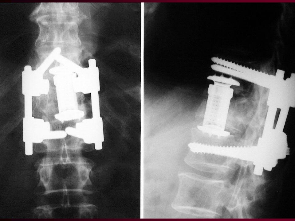 PORANĚNÍ C1,2 Méně časté, velké násilí působící na OC a C Zlomenina tylní kosti Zlomenina oblouku C1 Odlomení zubu C2 Zlomenina těla C2 KONZERVATIVNÍ TERAPIE