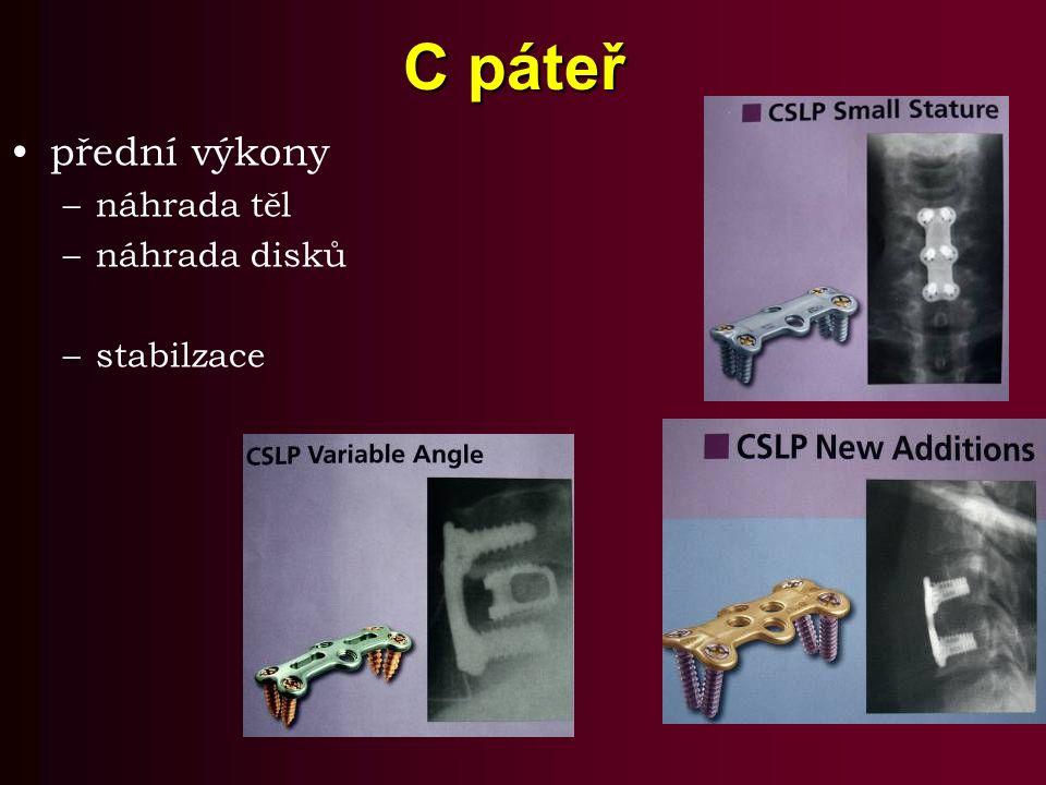 C páteř přední výkony –náhrada těl –náhrada disků –stabilzace