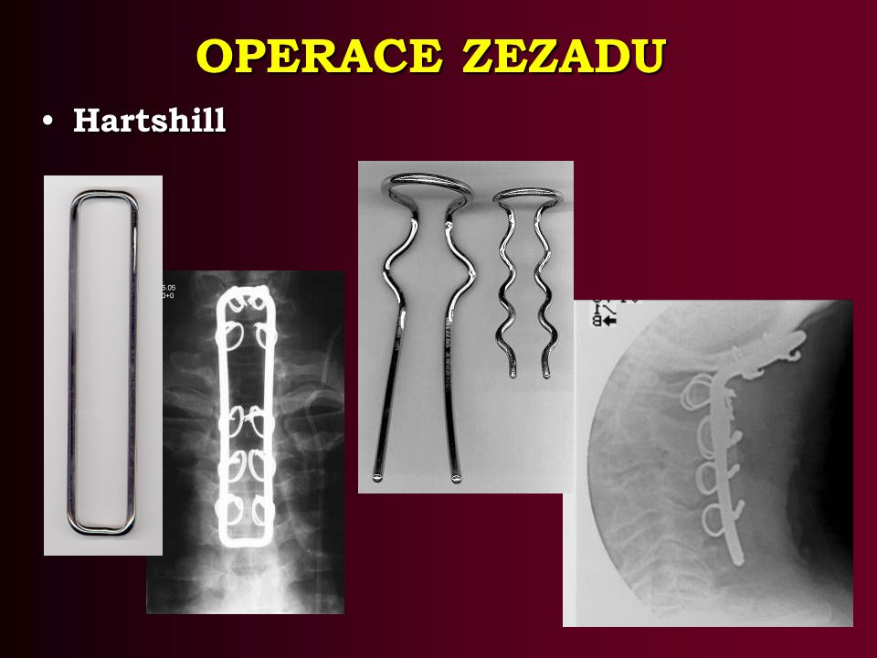 OPERACE ZEZADU Hartshill Hartshill
