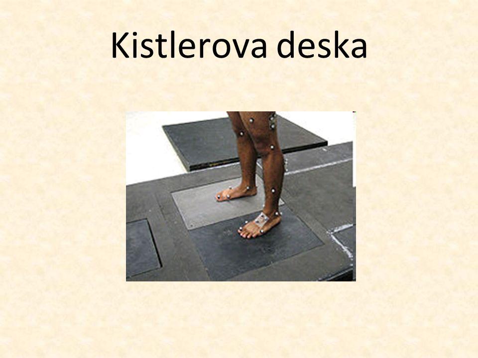 Kistlerova deska