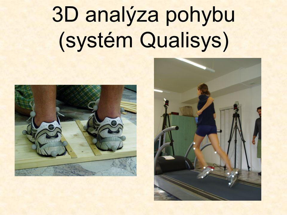 3D analýza pohybu (systém Qualisys)