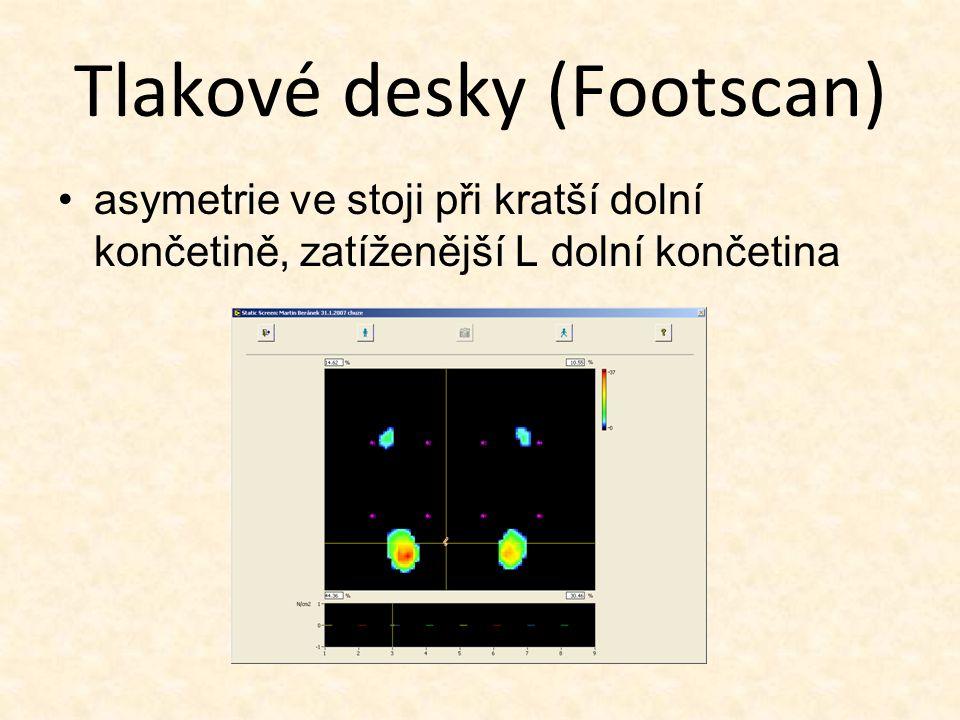 Tlakové desky (Footscan) asymetrie ve stoji při kratší dolní končetině, zatíženější L dolní končetina