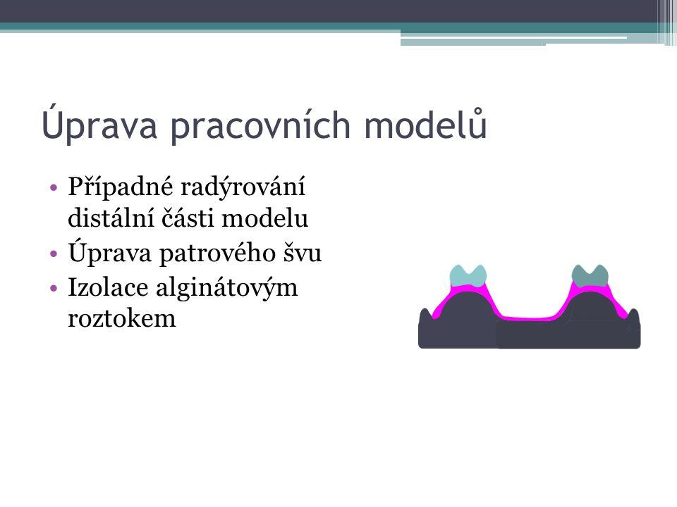 Úprava pracovních modelů Případné radýrování distální části modelu Úprava patrového švu Izolace alginátovým roztokem