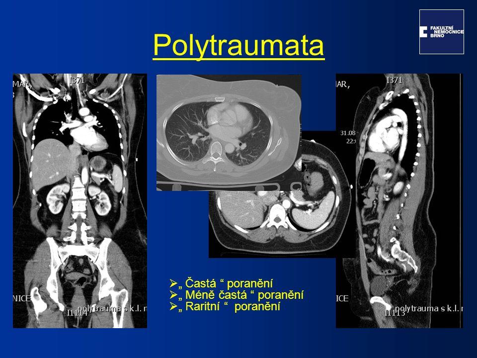 Pankreas  Relativně málo časté, tvoří 3-12% všech abdominálních poranění.