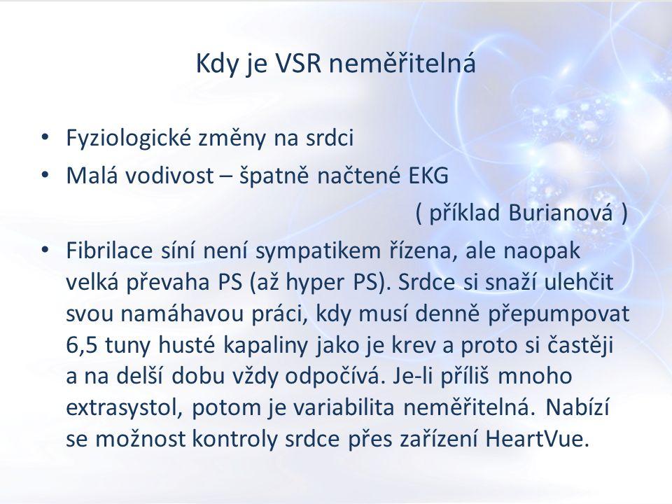 Kdy je VSR neměřitelná Fyziologické změny na srdci Malá vodivost – špatně načtené EKG ( příklad Burianová ) Fibrilace síní není sympatikem řízena, ale naopak velká převaha PS (až hyper PS).