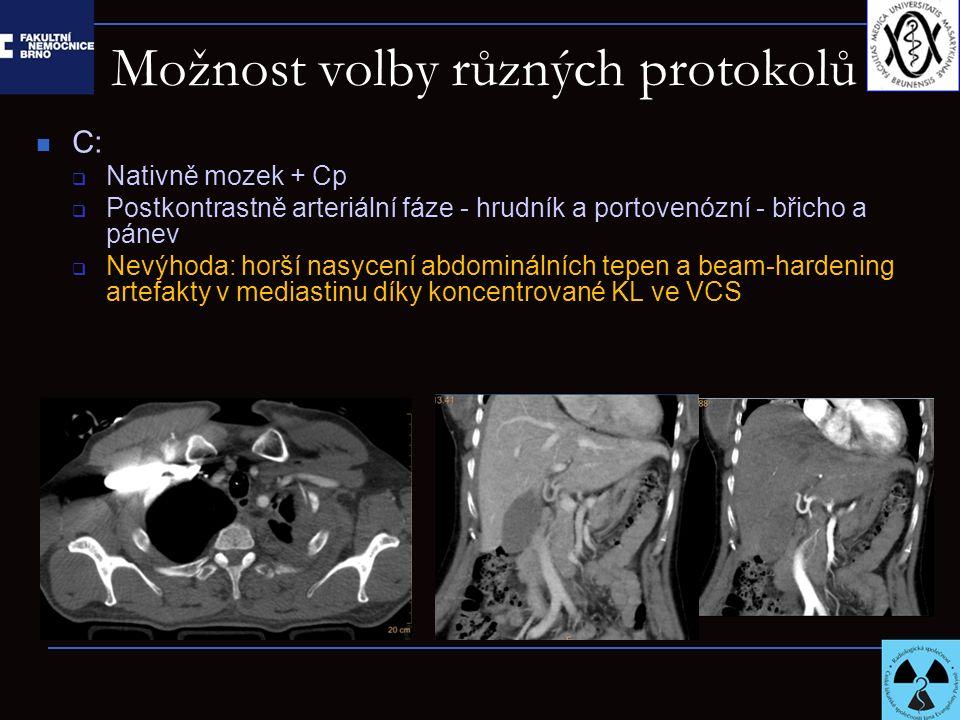 Možnost volby různých protokolů C:  Nativně mozek + Cp  Postkontrastně arteriální fáze - hrudník a portovenózní - břicho a pánev  Nevýhoda: horší n