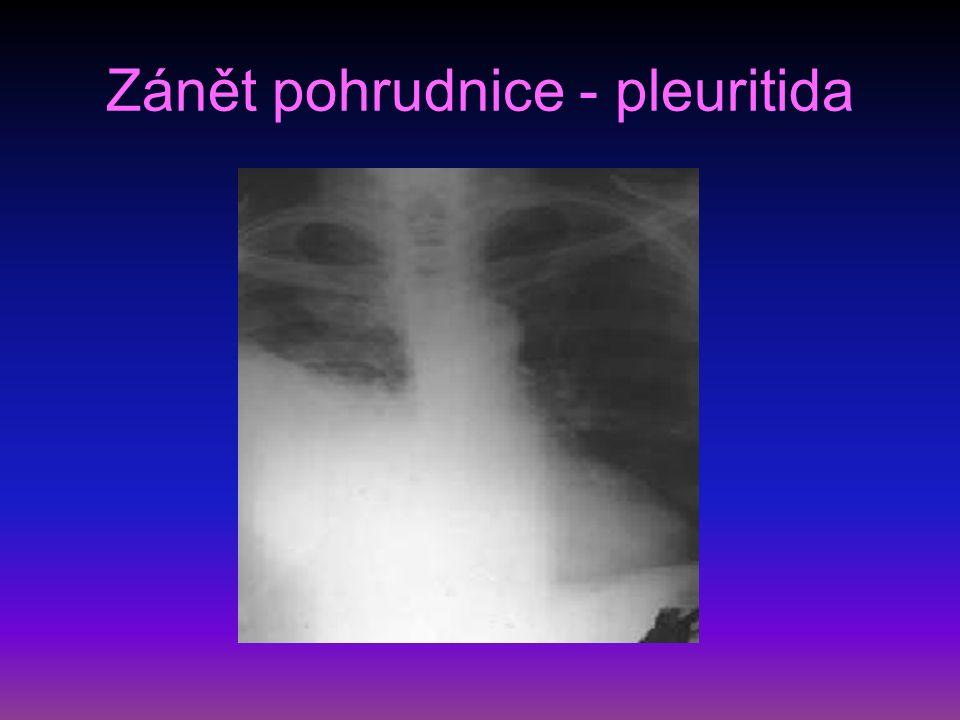 Zánět pohrudnice - pleuritida