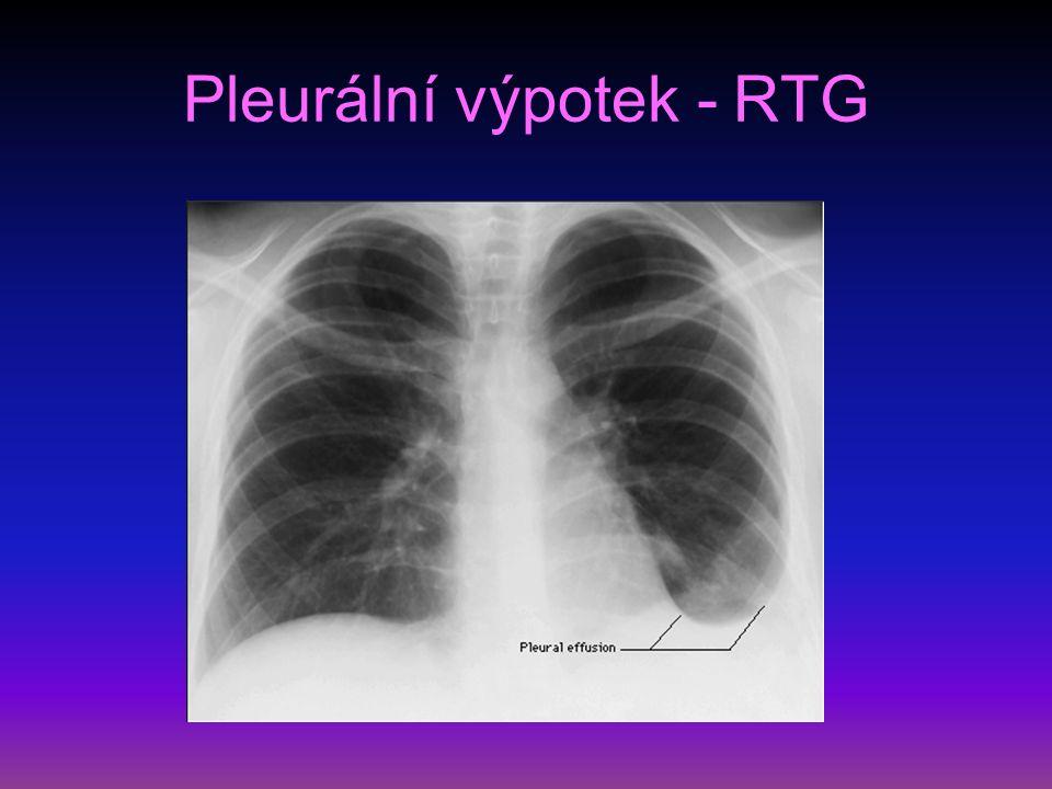 Pleurální výpotek - RTG