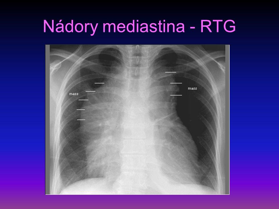 Nádory mediastina - RTG