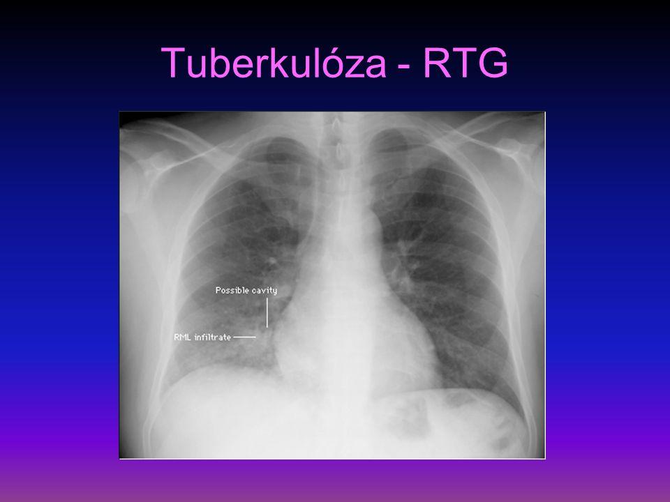 Nádory pleury I definice – nádorové bujení pleurální tkáně lokalizované – benigní, nebo difúzní – maligní etiologie – u lokalizovaných neznámo, u difúzních expozice azbestu, meta postižení prorůstáním, lymfogenně, hematogenně příznaky – klinicky většinou dlouho němé, dráždivý kašel, hubnutí, obtíže způsobené výpotkem, pleurální bolest