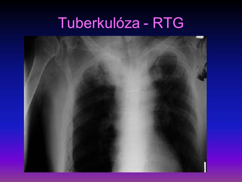 Tuberkulóza V léčba - nejčastěji čtyřkomibnace antituberkulotik, režimy krátkodobé 6-9 měsíců, dlouhodobé režimy – řídí se pozitivitou kultivace BK – rifampicin etambutol, izoniazid, pyrazinamid, stroptomycin preventivní opatření – očkování novorozenců a mladistvých od roku 1953, u starších na RTG primární kalcifikovaný komplex