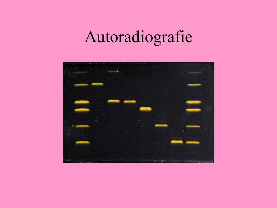 Autoradiografie