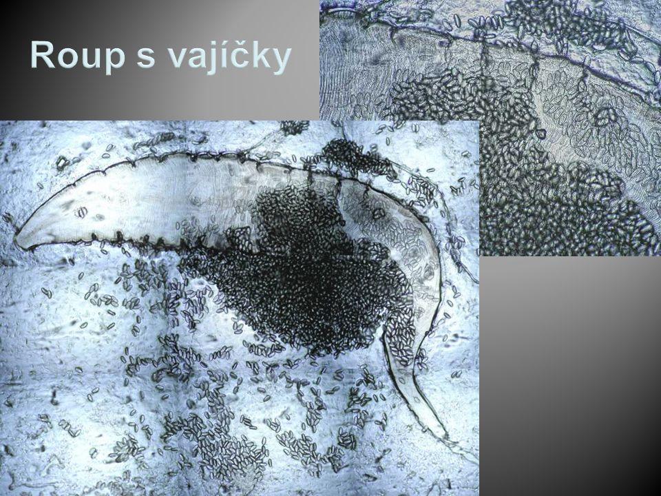 Ascaris lumbricoides (škrkavka dětská )  Hlístice, dospělci žijí v tenkém střevě člověka