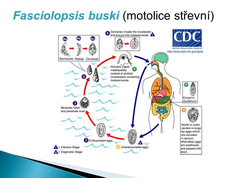 Fasciolopsis buski (motolice střevní)