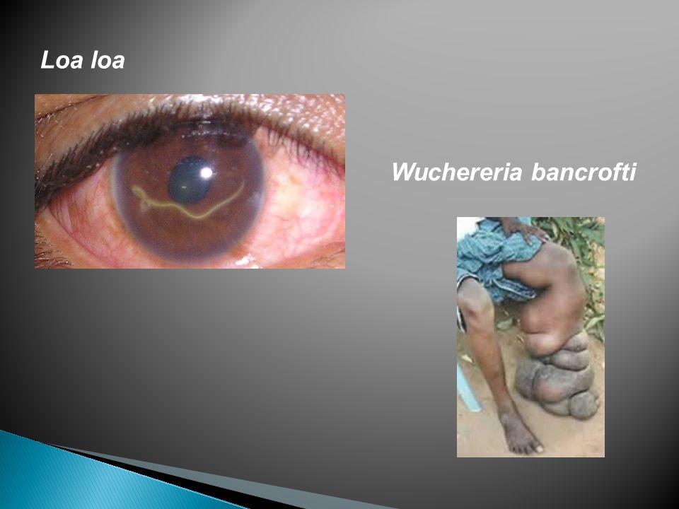 Loa loa Wuchereria bancrofti