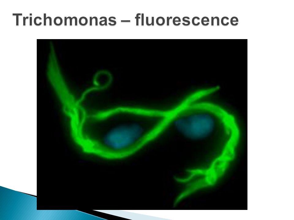 Trichomonas – fluorescence