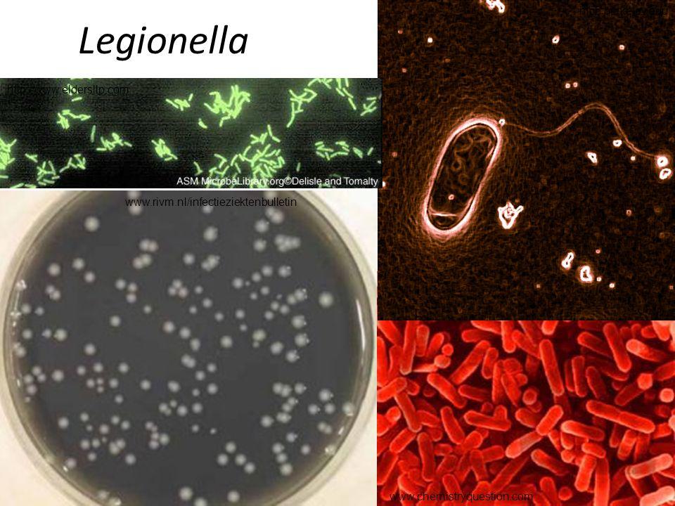 Legionella www.rivm.nl/infectieziektenbulletin www.chemistryquestion.com mcb.berkeley.edu http://www.eldersllp.com
