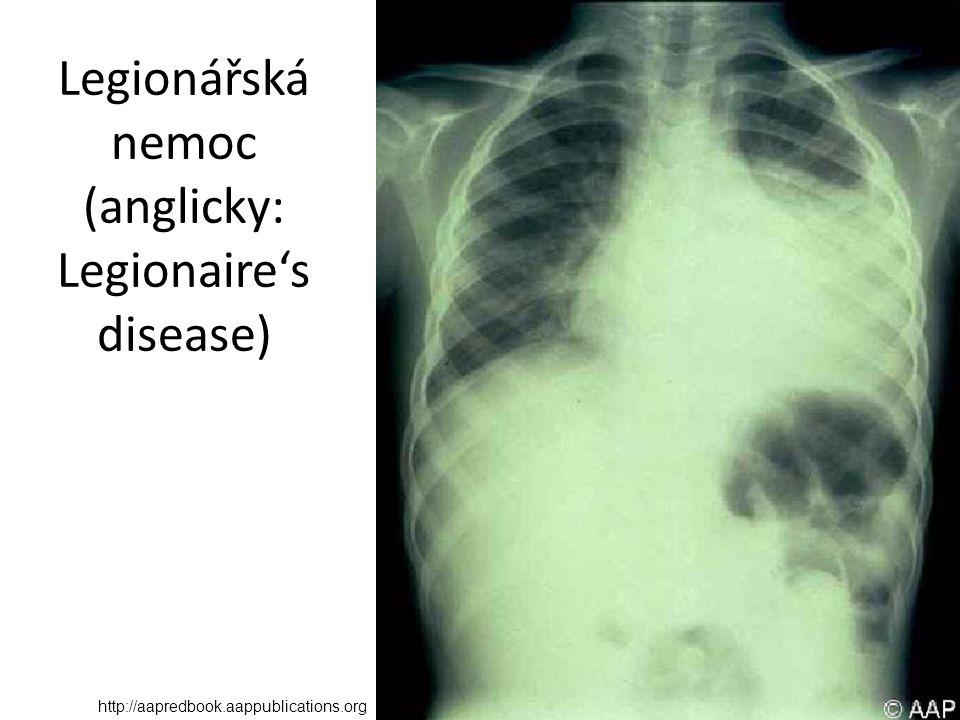 Legionářská nemoc (anglicky: Legionaire's disease) http://aapredbook.aappublications.org