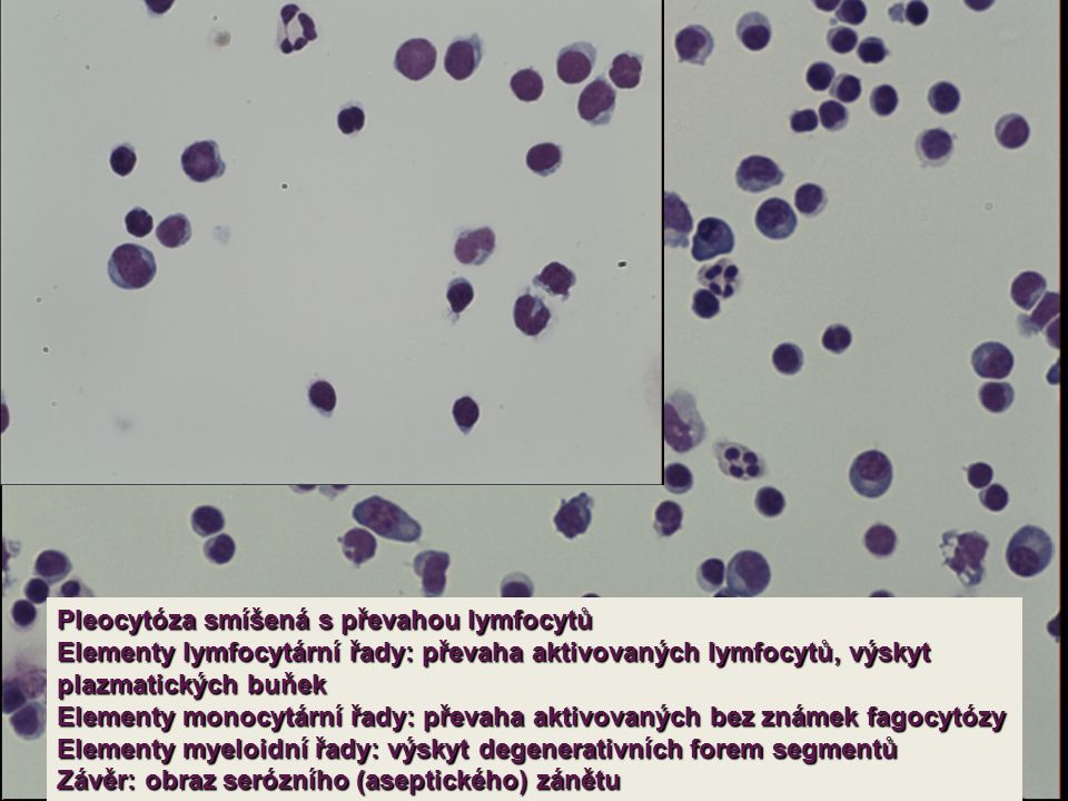 Pleocytóza smíšená s převahou lymfocytů Elementy lymfocytární řady: převaha aktivovaných lymfocytů, výskyt plazmatických buňek Elementy monocytární řady: převaha aktivovaných bez známek fagocytózy Elementy myeloidní řady: výskyt degenerativních forem segmentů Závěr: obraz serózního (aseptického) zánětu
