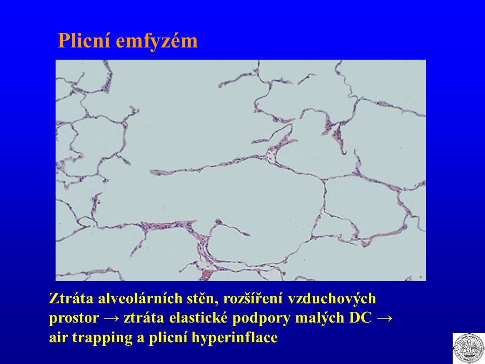 Plicní emfyzém Ztráta alveolárních stěn, rozšíření vzduchových prostor → ztráta elastické podpory malých DC → air trapping a plicní hyperinflace