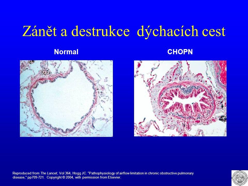 Zánět a destrukce dýchacích cest NormalCHOPN Reproduced from The Lancet, Vol 364, Hogg JC.