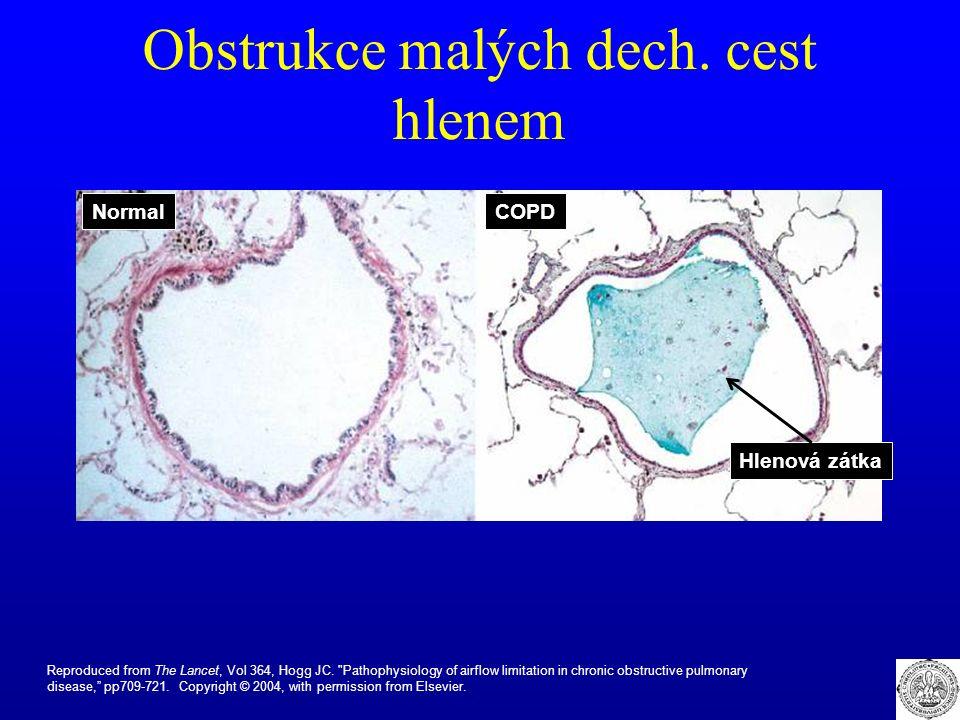 Obstrukce malých dech. cest hlenem Reproduced from The Lancet, Vol 364, Hogg JC.