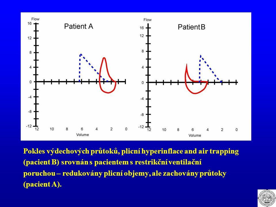 Pokles výdechových průtoků, plicní hyperinflace and air trapping (pacient B) srovnán s pacientem s restrikční ventilační poruchou – redukovány plicní