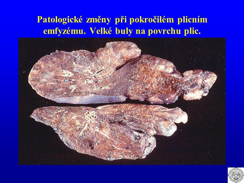 Patologické změny při pokročilém plicním emfyzému. Velké buly na povrchu plic.