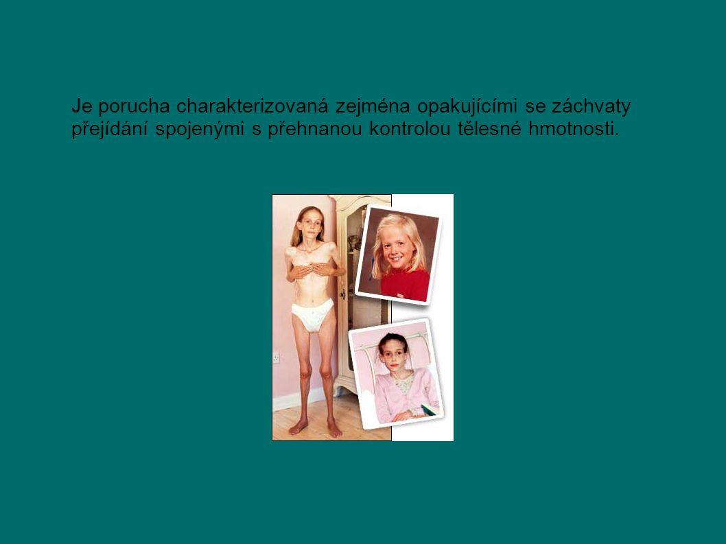 Je porucha charakterizovaná zejména opakujícími se záchvaty přejídání spojenými s přehnanou kontrolou tělesné hmotnosti.