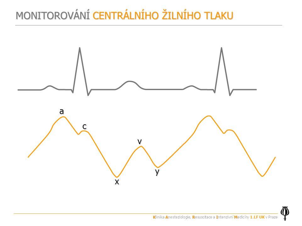 MONITOROVÁNÍ CENTRÁLNÍHO ŽILNÍHO TLAKU av c y x KARIM Klinika Anesteziologie, Resuscitace a Intenzivní Medicíny 1.LF UK v Praze