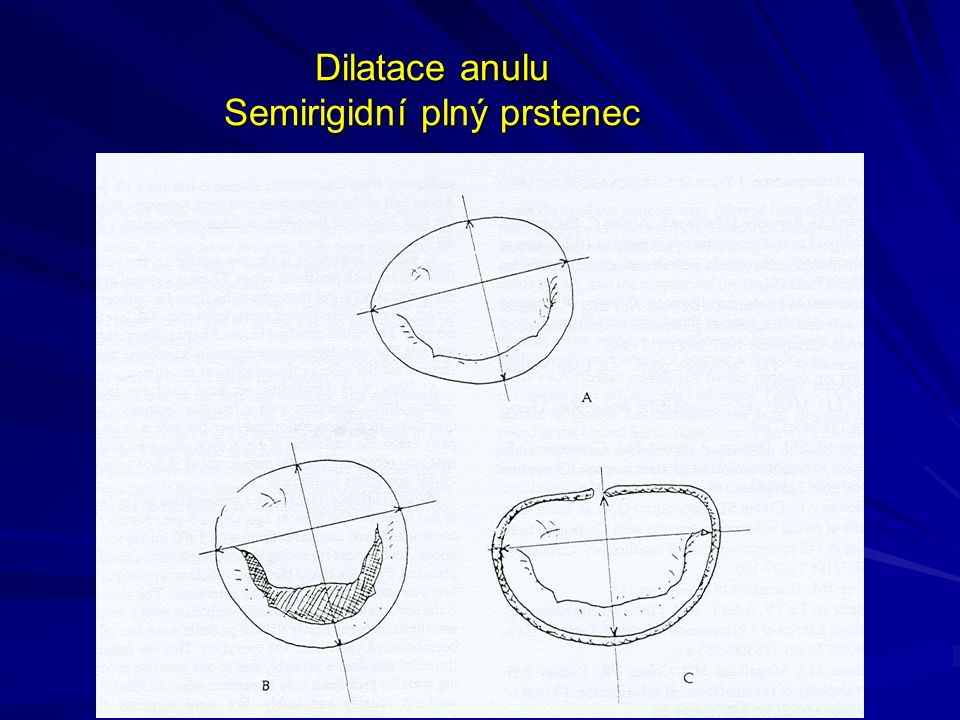 Dilatace anulu Semirigidní plný prstenec