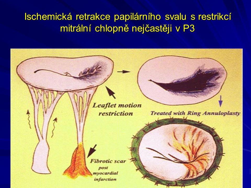 Ischemická retrakce papilárního svalu s restrikcí mitrální chlopně nejčastěji v P3
