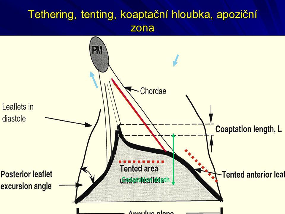 Tethering, tenting, koaptační hloubka, apoziční zona Coaptation depth