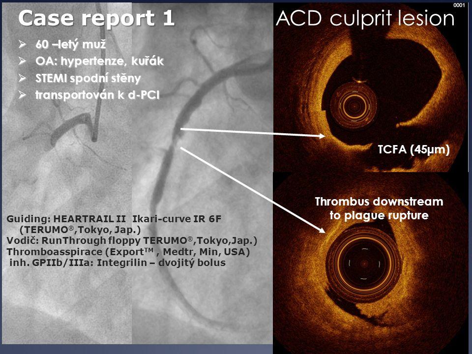  60 –letý muž  OA: hypertenze, kuřák  STEMI spodní stěny  transportován k d-PCI Case report 1 Guiding: HEARTRAIL II Ikari-curve IR 6F (TERUMO ®,To