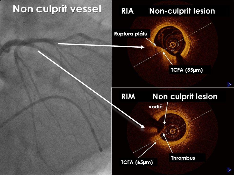 TCFA (65µm) Thrombus RIM Non culprit lesion vodič RIA Non-culprit lesion Ruptura plátu TCFA (35µm) Non culprit vessel