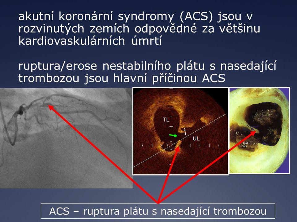 akutní koronární syndromy (ACS) jsou v rozvinutých zemích odpovědné za většinu kardiovaskulárních úmrtí ruptura/erose nestabilního plátu s nasedající