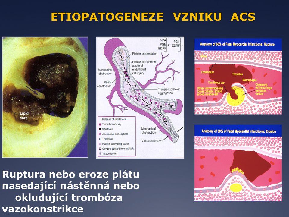 Ruptura nebo eroze plátu nasedající nástěnná nebo okludující trombóza vazokonstrikce ETIOPATOGENEZE VZNIKU ACS