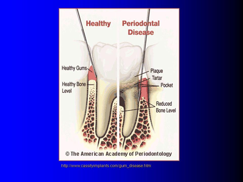 http://www.cassityimplants.com/gum_disease.htm