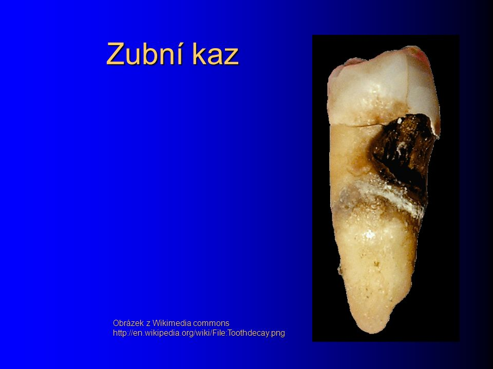 Vývoj zubního kazu Nejprve vzniká místní poškození skloviny, takzvaná bílá křídová skvrna.