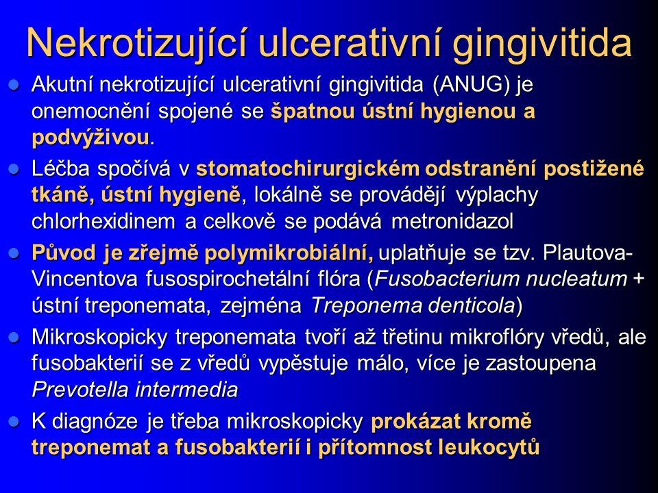 Nekrotizující ulcerativní gingivitida Akutní nekrotizující ulcerativní gingivitida (ANUG) je onemocnění spojené se špatnou ústní hygienou a podvýživou