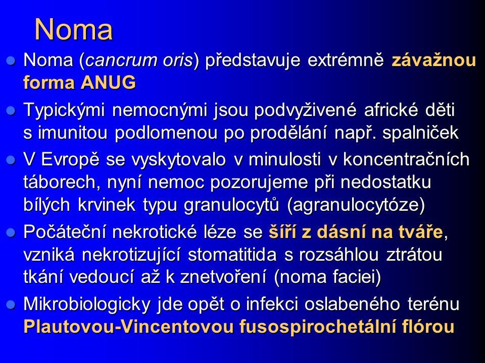 Noma Noma (cancrum oris) představuje extrémně závažnou forma ANUG Noma (cancrum oris) představuje extrémně závažnou forma ANUG Typickými nemocnými jso