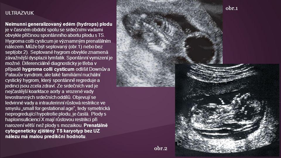 ULTRAZVUK Neimunní generalizovaný edém (hydrops) plodu je v časném období spolu se srdečními vadami obvykle příčinou spontánního abortu plodu s TS.