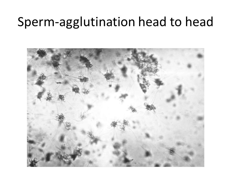Sperm-agglutination head to head