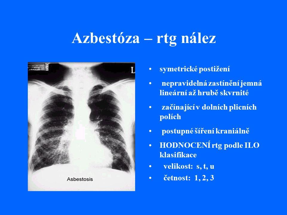 Azbestóza – rtg nález symetrické postižení nepravidelná zastínění jemná lineární až hrubě skvrnité začínající v dolních plicních polích postupné šíření kraniálně HODNOCENÍ rtg podle ILO klasifikace velikost: s, t, u četnost: 1, 2, 3