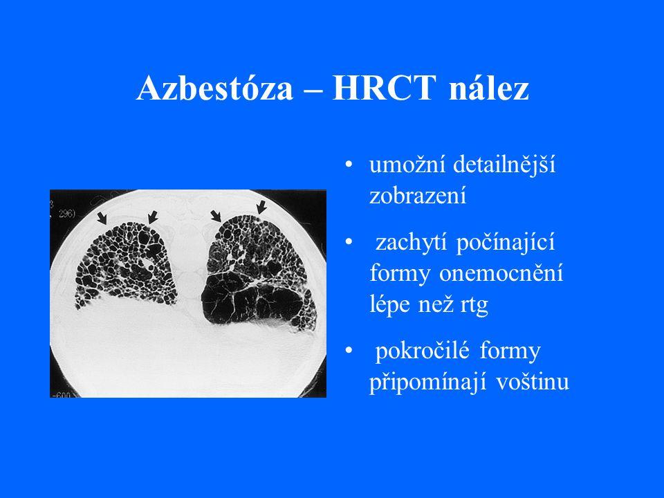 Azbestóza – HRCT nález umožní detailnější zobrazení zachytí počínající formy onemocnění lépe než rtg pokročilé formy připomínají voštinu
